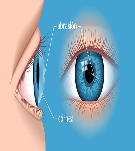 Best Eye Hospital in India for Corneal Transplant