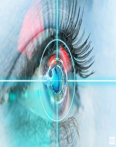 Femto Cataract Eye Surgery